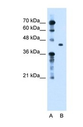 NBP1-60049 - TGFBI / BIGH3