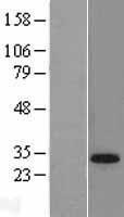NBL1-16860 - TGIF Lysate