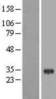 NBL1-16877 - THAP8 Lysate