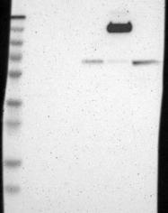 NBP1-86131 - Thrombospondin-3 (THBS3)