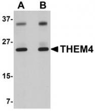 NBP1-77360 - THEM4 / CTMP