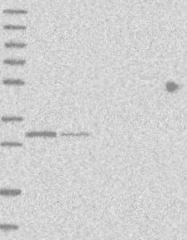NBP1-82314 - THG1L / ICF45