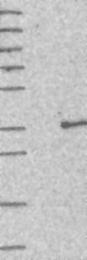 NBP1-82315 - THG1L / ICF45