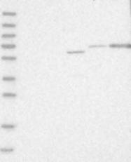 NBP1-89243 - THSD4