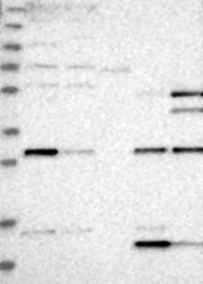 NBP1-80686 - Thiamine-triphosphatase (THTPA)