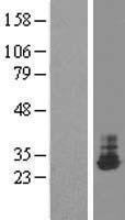 NBL1-16900 - THTPA Lysate