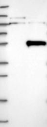 NBP1-82194 - THUMPD1