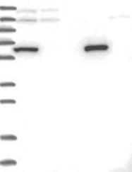NBP1-85132 - THUMPD3