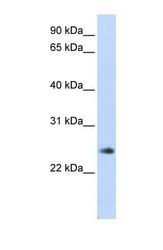 NBP1-55405 - THYN1 / THY28