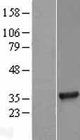 NBL1-16908 - TICAM2 Lysate