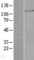 NBL1-16909 - TIE1 Lysate