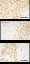 NBP1-18614 - CD202b / TEK