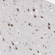 NBP1-83747 - TIF1-gamma / TRIM33