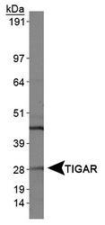 NBP1-49534 - TIGAR