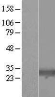 NBL1-08147 - TIGAR Lysate