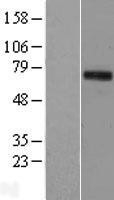 NBL1-16911 - TIGD1 Lysate