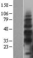 NBL1-11452 - TIM-3 Lysate