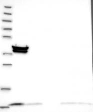 NBP1-80682 - TIMM10