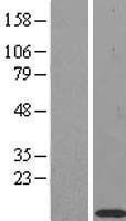 NBL1-16916 - TIMM10 Lysate