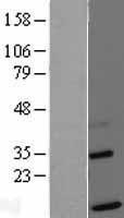 NBL1-16917 - TIMM13 Lysate