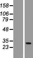 NBL1-16918 - TIMM17A Lysate