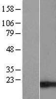 NBL1-16919 - TIMM17B Lysate