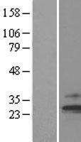 NBL1-16921 - TIMM23 Lysate