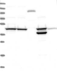 NBP1-86941 - TIMM44