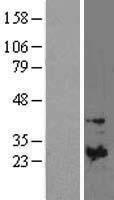 NBL1-16924 - TIMP1 Lysate