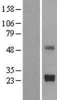 NBL1-16925 - TIMP2 Lysate