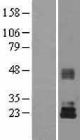 NBL1-16926 - TIMP3 Lysate