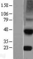 NBL1-16927 - TIMP4 Lysate