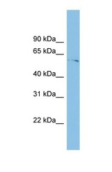 NBP1-57765 - TINAGL1
