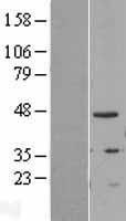 NBL1-16933 - TIPIN Lysate