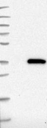 NBP1-85169 - TIP41-like protein (TIPRL)