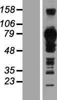 NBL1-16937 - TJAP1 Lysate