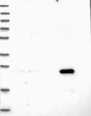 NBP1-85834 - TLCD1