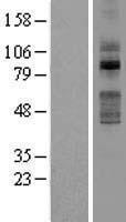 NBL1-16948 - TLK2 Lysate