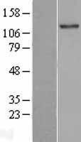 NBL1-16949 - TLL2 Lysate