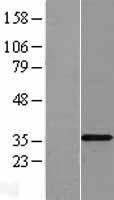 NBL1-16958 - TLX3 Lysate