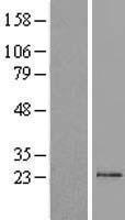 NBL1-16959 - TM2D1 Lysate