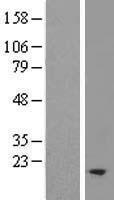 NBL1-16960 - TM2D2 Lysate