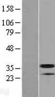 NBL1-16962 - TM2D3 Lysate