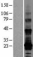 NBL1-16964 - TM4SF19 Lysate