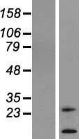NBL1-16965 - TM4SF20 Lysate