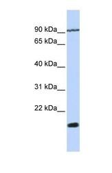 NBP1-69647 - TM4SF4