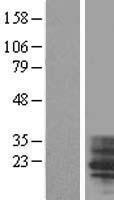 NBL1-16966 - TM4SF4 Lysate