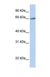 NBP1-62531 - TM9SF1