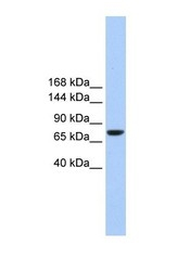 NBP1-59417 - TMC2