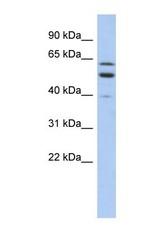 NBP1-59917 - TMCC1
